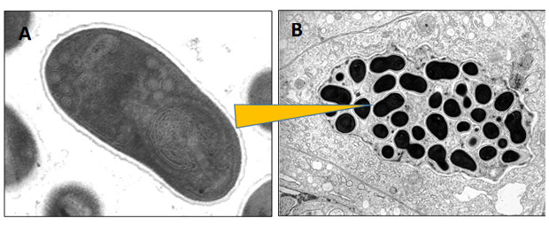 Microsporidia