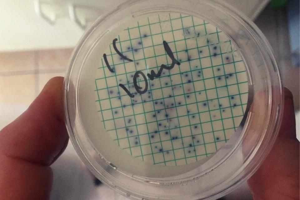 a petri dish